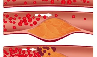 Cross-Institutional Study Looks within Arteries to Understand Effects of Cholesterol Medications